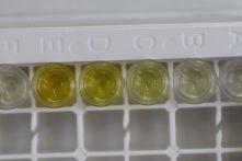 analyses amines biogènes Groupe ICV